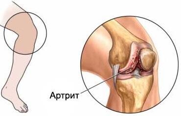 Артирит