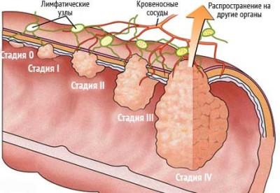 Стадии рака толстой кишки